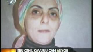 ACI KAVUN - Mustafa AYDINER
