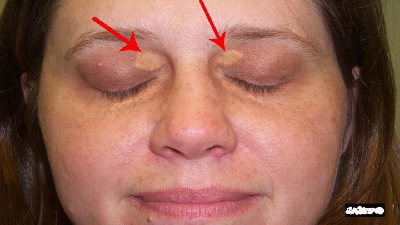 आँखों के नीचे की सफ़ेद चर्बी हटाएँ | जानिए कैसे | Remove Xantelasma Quickly #1