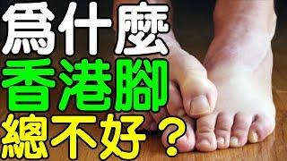 為什麼香港腳總是不會好?|健康享知識《享知識TV》