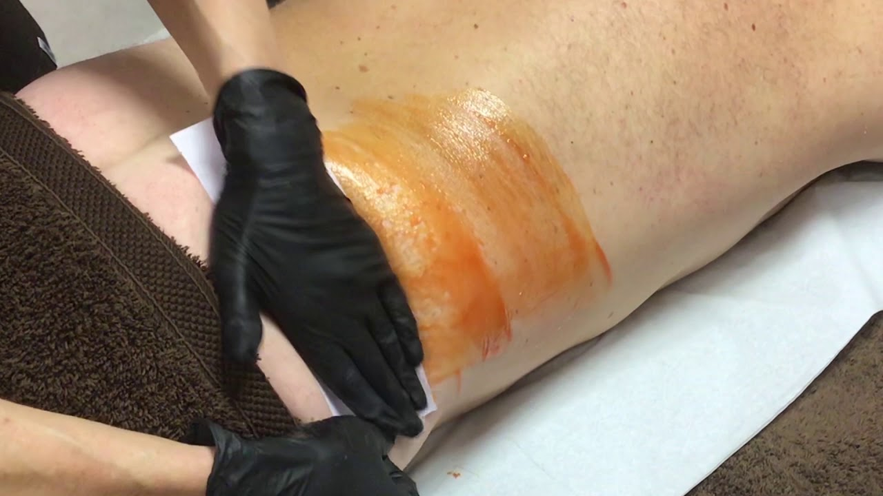 Back Wax Demonstration using Outback Organics Amber Strip Wax & Roller Cartridge.