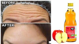 Cómo ELIMINAR LAS ARRUGAS con vinagre de manzana / Buenos resultados