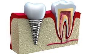 Виды стоматологически  имплантатов(, 2015-12-07T08:50:17.000Z)