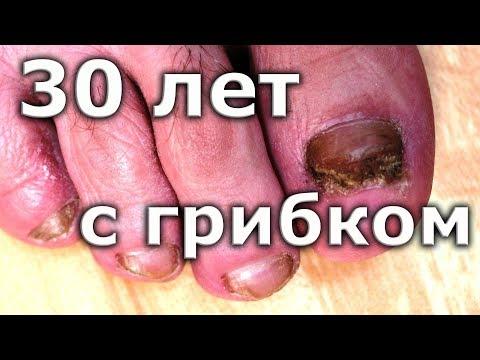 Где вылечить грибок ногтей на ногах в спб