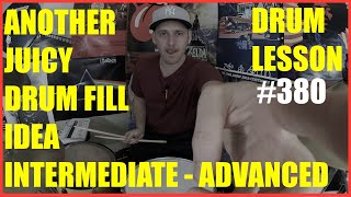 Another Juicy Drum Fill Idea - Intermediate To Advanced - Drum Lesson #380