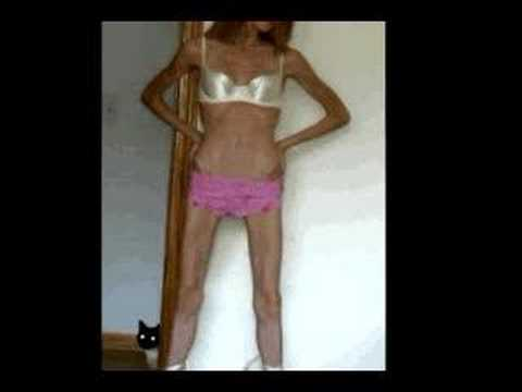 Anorexia in Non-Western Nations