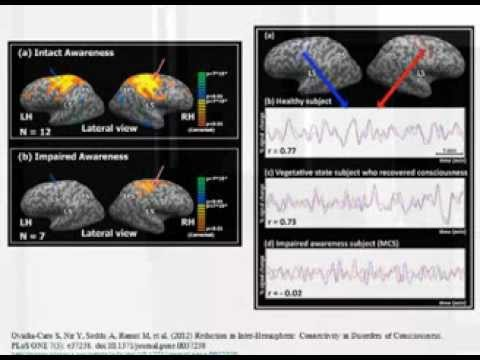 Resting-state fMRI and the Human Connectome