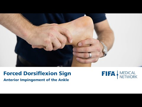 Forced Dorsiflexion Sign | Anterior Impingement Of The Ankle