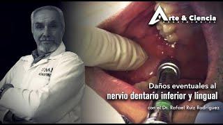 ►Daños eventuales al Nervio Dentario Inferior y lingual | Dr. Rafael Ruíz Rodríguez