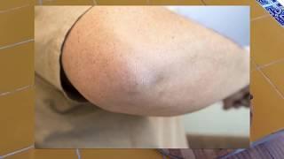 Черные локти: причины и способы лечение темных и шершавых пятен (видео и отзывы)