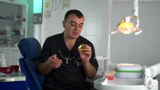 Смотреть видео Протезирование зубов в Москве в стоматологии
