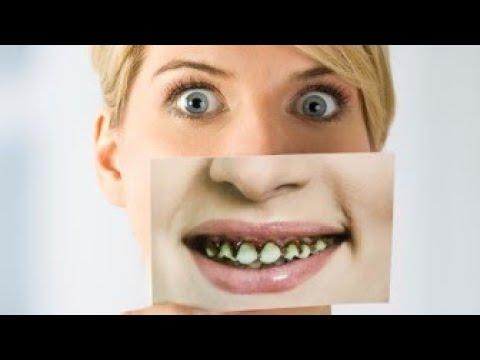 Download Evo kada pokvaren zub može dovesti i do smrtnog ishoda! Ovo je važno da znate!