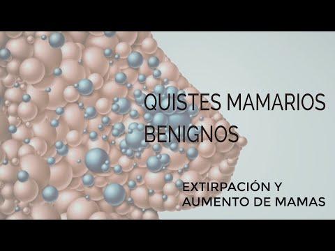 Quistes benignos mamas, extirpación y aumento Dr Torres Fortich