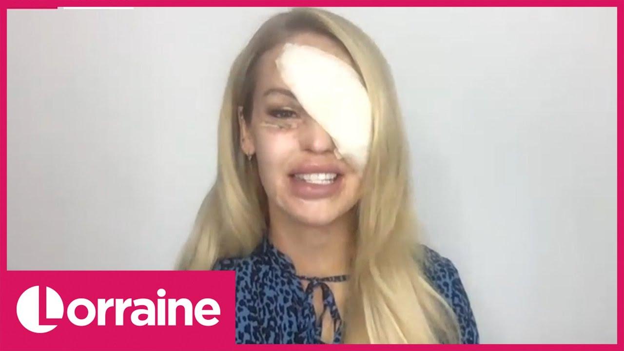 katie piper visszakapta a látását)