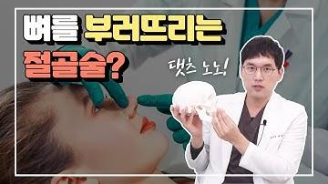 뼈를 부러뜨리는 절골술?! 코 절골술을 하는경우와 하면 안되는 경우가 있다!(osteotomy, nasal bone reduction)