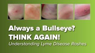 Think the Lyme Disease Rash is Always a Bull's-eye? Think Again!  | Johns Hopkins Rheumatology