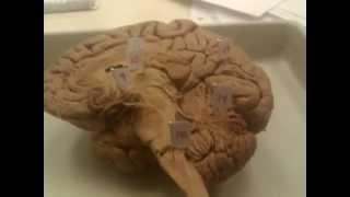 Kinghorn lab Brain