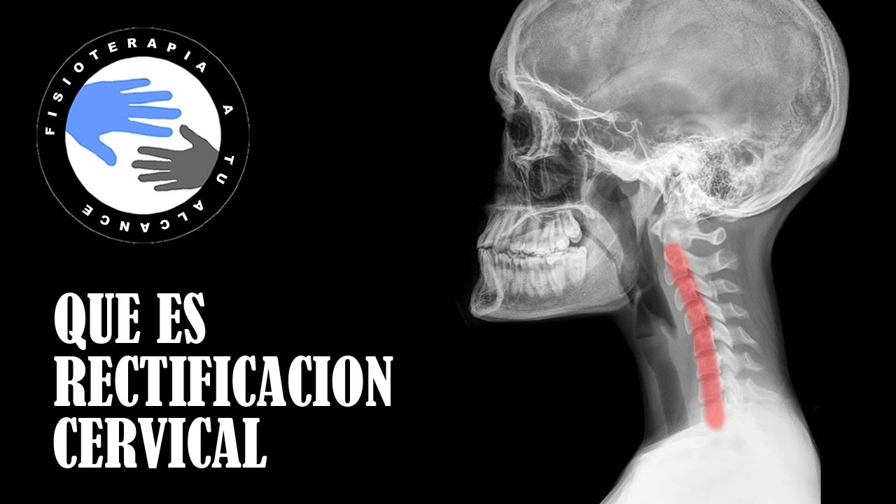 rectificacion cervical, que es y como se produce - youtube
