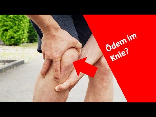 Hast du eine Überlastung im Knie? | Knochenmarksödem | Sehnenschmerzen