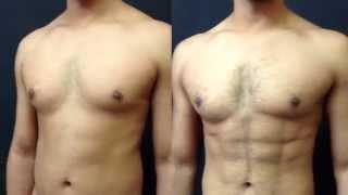 Transformation from VASER Hi-Def Liposuction at PHI Clinic thumbnail