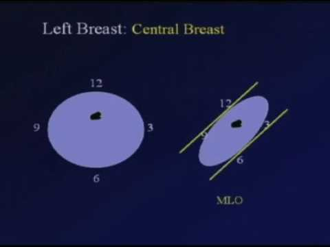 Correlating Mammography, Ultrasound and MRI
