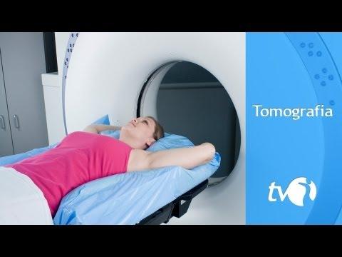 Tomografia: saiba como funciona o exame de imagem