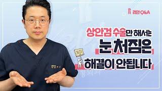 늘어난 눈주름 눈썹하피부거상술+상안검
