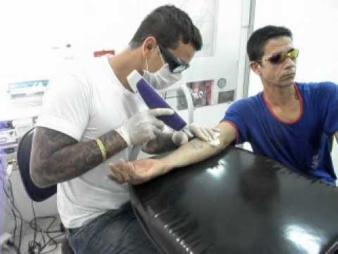 Remoção De Tatuagem Estúdio Eder Tatto