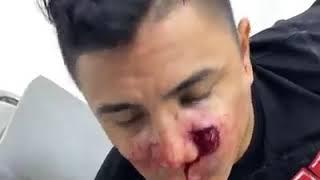 Mauricio bastidas (PVC) atacado en cali Tres Milagros