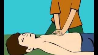 Первая помошь. непрямой массаж сердца