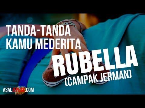 TANDA TANDA SESEORANG TERKENA RUBELLA (Campak Jerman / Campak 3 hari)