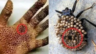 5 САМЫХ ОПАСНЫХ НАСЕКОМЫХ В МИРЕ.Самые опасные насекомые мира