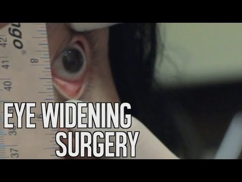 TGK Films - Eye Widening Surgery