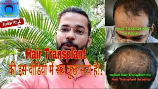 13 Month Best Hair Transplant Result 2019 OR Hair Transplant Fail