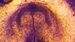 Összeesküvés papillómáktól évszázadokig a vízen