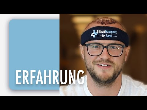 Haartransplantation Erfahrung direkt nach der OP | Elithair