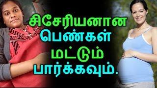சிசேரியனான பெண்கள் மட்டும் பார்க்கவும்   Tamil Health Tips   Home Remedies   Latest News