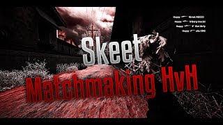 CSGO Matchmaking HvH | Skeet vs Aimware on Office