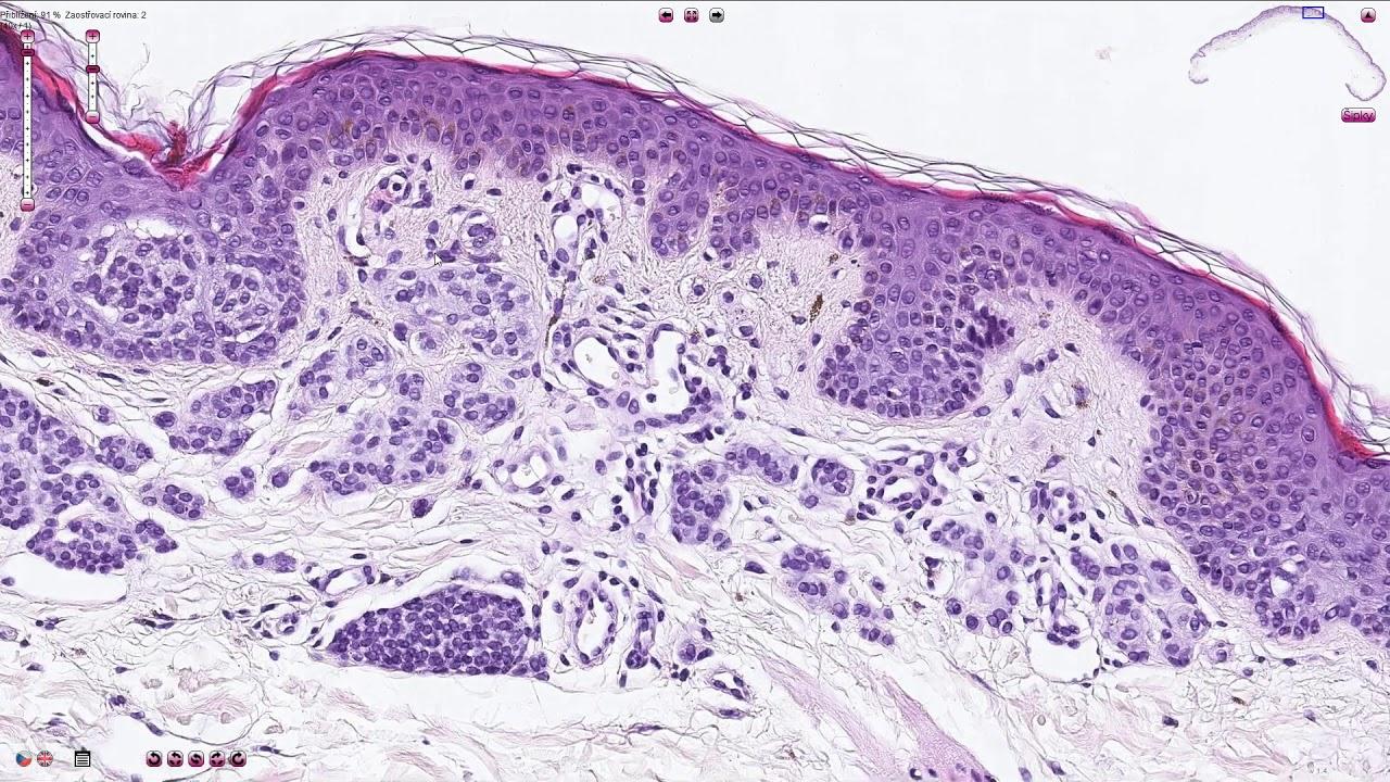 epidermális nevus