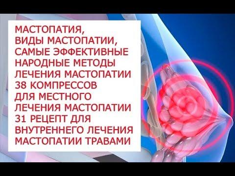 Мастопатия, виды мастопатии, самые эффективные народные методы лечения мастопатии 38 компрессов для