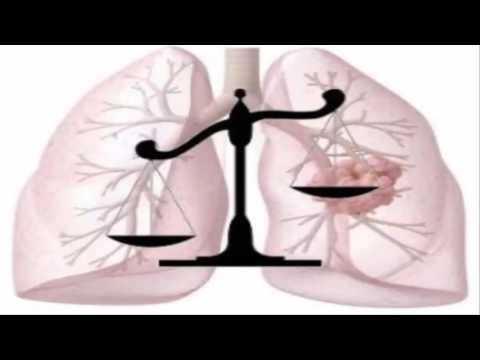 Asbestos cancer attorney   Litigation related to asbestos injuries and property damages
