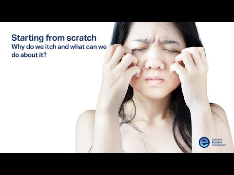 Starting from Scratch: Why do we itch and what can we do about it?
