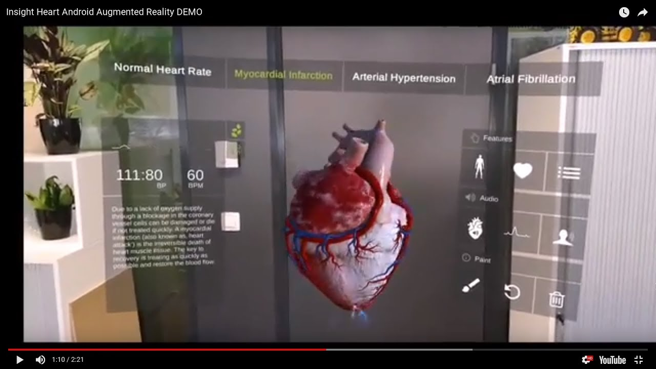 Insight Heart App   Augmented Reality Android App DEMO