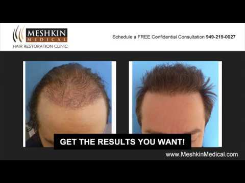 Meshkin Medical Hair Restoration Before and After Hair Transplant Gallery Newport Beach Irvine