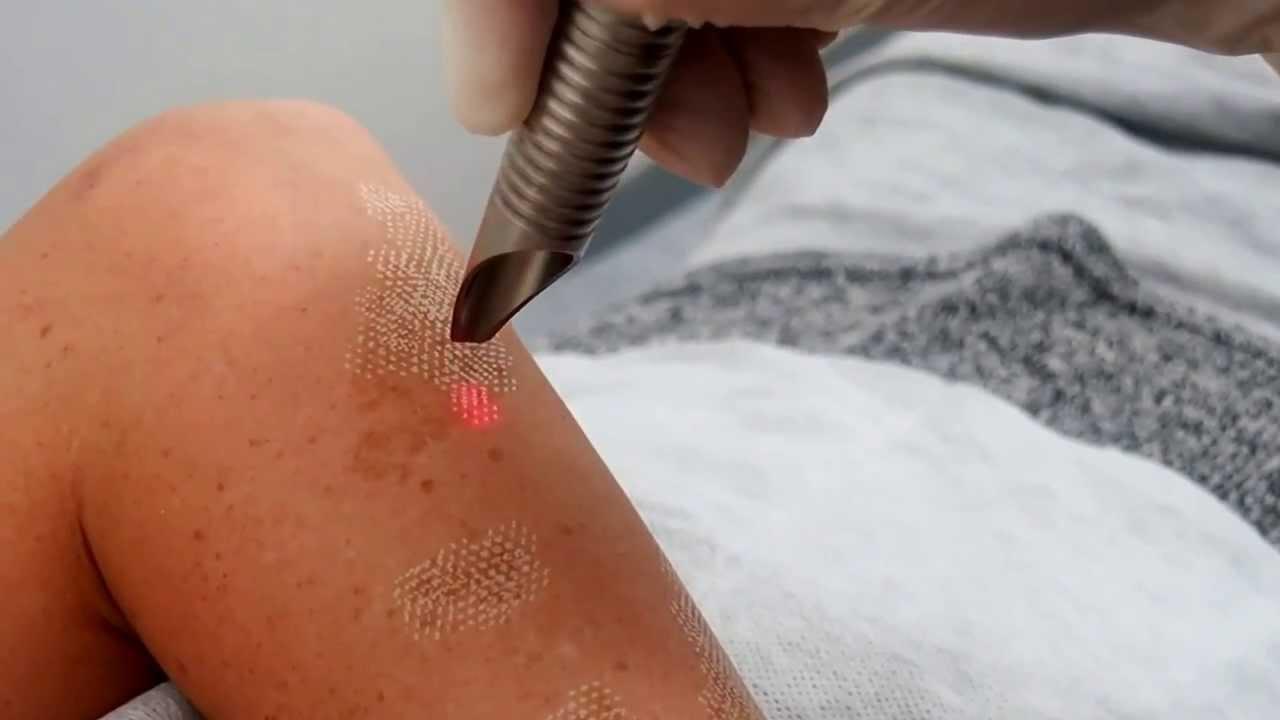 Image result for Birthmark removal