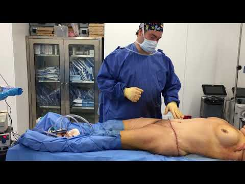 Short Scar Arm Lifts Part 3 with Tummy Tuck