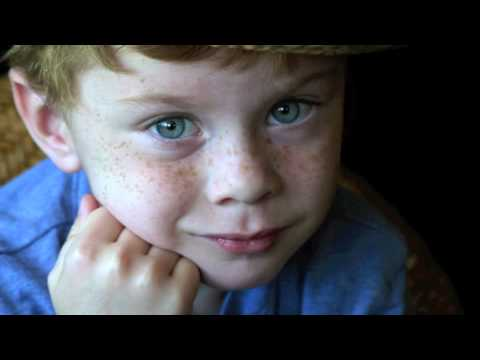 freckles:-the-story-of-one-cute-freckled-face-kid