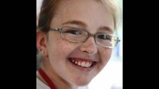 Faces of Marfan Syndrome