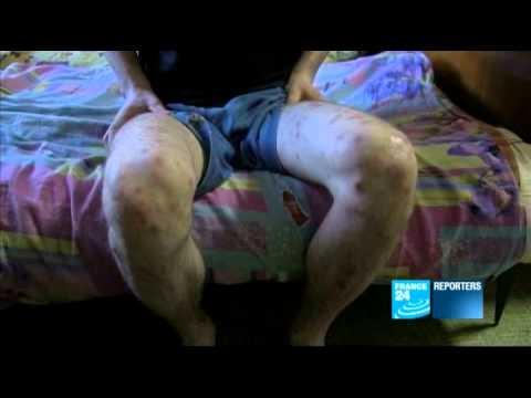 """Crocodile"" : dans l'enfer de la drogue en Russie"