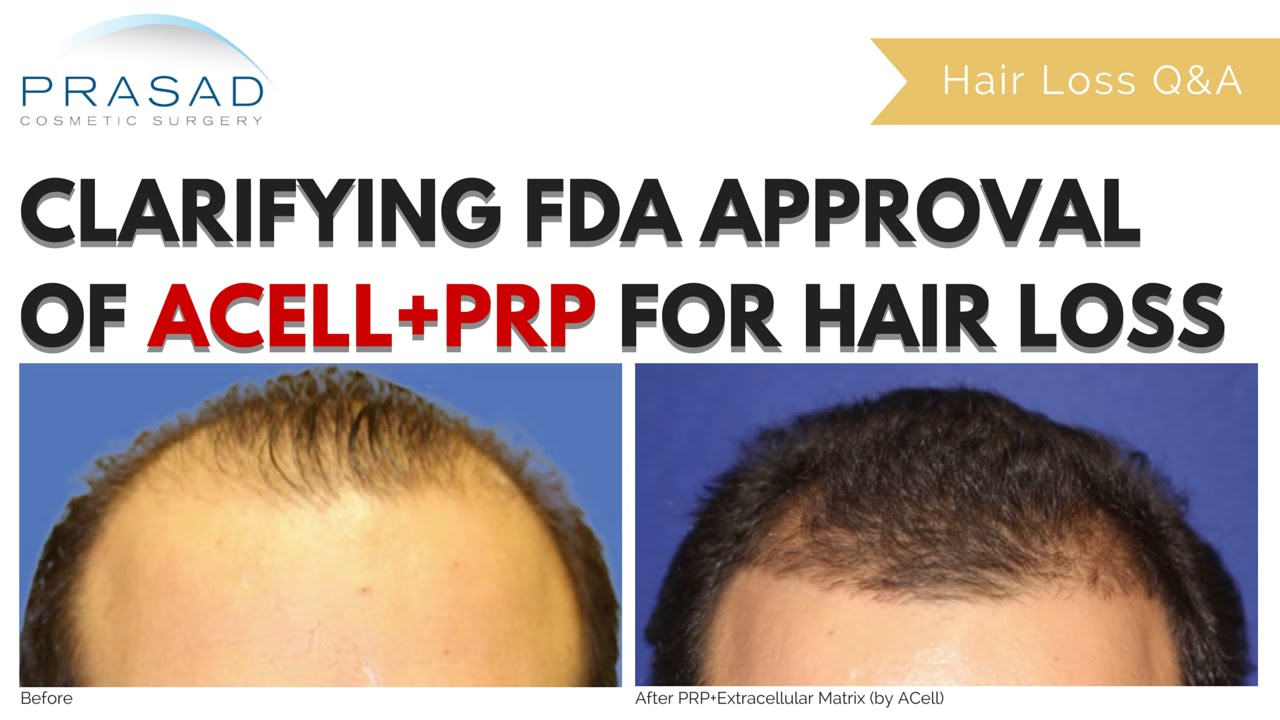 Acell Prp Non Surgical Hair Loss Treatment Long Term