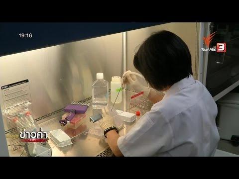 ม.มหิดลวิจัยแอนติบอดี้มนุษย์ รักษาโรคไข้เลือดออก